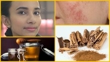 How to Remove Acne Marks, Dark Spots & Pigmentation Fast? मुँहासे हटाने के लिए घरेलू उपचार