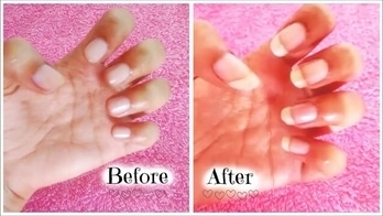 This is How I Grew My Nails in Just 10 Days! #nails #howtogrownailslong #longnails #homemaderemedies  ❤ Checkout my Video on YouTube! And don't forget to click the subscribe button. https://youtu.be/BX4JbUbA_Fk