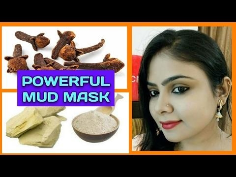 EFFECTIVE MUD MASK FOR ACNE, DRY & OILY SKIN #dryskin #mudmask ..#umavlogs  VLOGS