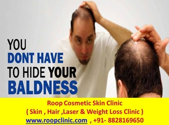 #Hair #transplant #Starts #From  24999/- . #callorwhatsapp #Now #TO #Avail #Free #consultation   @  +91-8828169650    743 Views  #ROOP #COSMETIC #SKIN #CLINIC  ( #SKIN , #HAIR , #LASER & #WEIGHT #LOSS #CLINIC ) #IN #MUMBAI   #CALL #NOW  +91-8828169650   #restylane #Filler  #bottox #botox #botox #botoxfiller #botoxserum  #dermatology #derma #dermatologist #dermal #LIPS #lips #dermafiller #hashtaggameon #hashtags  #IndianWeddings #WeddingReception #WeddingInspo #WeddingInspiration #WeddingPlanner #WeddingIdeas #Shaadi #WeddingDetails #WeddingDesign #WeddingStyle #WeddingDay #VintageDecor #FloralDecor #Sparkle #Pink #WeddingLook #WeddingDreams #WeddingVibes #Confettis #Pheras #Vibrant #WeddingFlowers #PopularPage #EventPlanner #WeddingGoals  #destinationweddingplannerinjodhpur #destinationweddingplannerinjaipur #destinationweddingplanneringurgaon #destinationweddingplannerindelhincr #crochet #awesome #twd #themeweavers #wedding #indianwedding #weddingdecor #decor #ideas #wedmegood #wedding #marwariwedding #nriwedding #instalove #instadaily #instagood #love #happiness #weddingplanning #love #photography #instapic #instalike #floral #indianbride #floraldecor #floral #white #yellow #floraldesign #instapretty #mandap #weddings #jodhpur #rajasthan #ITC #showstopper #indianblogger #ilovewinters #pictureoftheday #roposodaily #winter #ropo-love #soroposo #newdp #hello2017 #fashionblogger #ootd #makeup #love #roposo #fashion #beauty #decor #aliceinwonderlandtheme #thelabelbazaa #stylist #hair #stylish #fashionstyle #online #happy #tshirt #beautiful #bloggerstyle #mumbai #soroposolove #potd #travel #photooftheday #celebrity #instagood #picoftheday #bloggerlife #dress #india #makeup #lehenga #fashionblogger #wedding #follow #roposogal #followme #instafashion #clothes #delhi #wedmealready #wedding #weddings #weddingwear #weddingdiaries #weddingseason #weddingphotography #weddinglook #weddingdress #weddingmakeup #weddinginspiration #weddingcollection #weddingbells #weddingsutra #weddingday #weddingplz #weddingdecor #weddingdecorideas #weddingdecoration #weddingdesign #weddingdesigner #awesomelook #girls #beauty #delhi #picoftheday #styleblogger #blogger #indian #online #followme #ropo-love #realweddings #wedding #bridal #bridesofindia #themeweavers #engaged #love #soroposolove #soroposo #soroposogirl #destinationwedding #beach #weddingseason #india #roposolove #love #bloggerlife #blog #lifestyle #photooftheday #photographs #london #weddingdiaries #creative #followme #ropo-love #floral # #trendy #weddings #weddingwear #wedding-lehnga #weddinglook #weddingbells #weddingphotography #weddingmakeup #weddingdress #weddingcollection #weddinginspiration #wedding-bride #weddingphotographer #engagement #engaged #engagementoutfit #engagementring #engagementlook #engage #engagements #engagementrings #engagementfunction #engagementmakeup #engagement #engagementgowns #engagementceremony #engagementphotography #engagementspecial #decor#decorations #decoration #decorative #decorate #decorated #decorator #decors #decoratives #decorating #decortips #decortip #decorativeartsofindia #event #events #evening #eventing #popxo event #floral #creative #stylesnapper #ropo-good #newdp #gymselfie #merrychristmas #roposostyle #santa #bye2016 #festival #christmasoutfit #christmasvibes #fun #happy #sale #newdp #christmas #mood #jinglebells #swag #follow #photoshoot #delhi #roposoblogger #selfieoftheday #india #instagood #new #red #cute #onlineshopping #lifestyle #designer #goa #myfirstpost #soroposo #springsummer #roposome #style #roposogal #aselfieaday #roposolove #designer #delhi #hairstyle #jewellery #swag #makeup #likeforlike #fashion #followme #desi #loveyourself #love #streetstyle #fun #newdp #roposo #ropo-love #ethnic #beauty #ootd #blogger #myfirststory #hot #fashionweek #shopnow #skincare #casual #aselfieaday #selfieoftheday #indianblogger #black #delhi #mumbai #wedding #ibfw2017 #dress #follow4follow #roposoblogger #loveyourself #beauty #india #cool #makeup #ootd #likeforlike #selfie #blogger #fashion #myfirststory #streetstyle #newdp @adah_ki_adah @aashkagoradia #bloggerlife #makeup #selfieoftheday #weddingseason #yellow #wedding-lehnga #skincare #newdp #indianwedding #soroposolove #celebrity #eventing #thelabelbazaa #awesome #event #decorated #christmasoutfit #roposogal #black #instagood #cool #bye2016 #engagementring #mumbai #creative #decorator #engagements #mood #instalove #happiness #ootd #jodhpur #weddingdress #weddingsutra #likeforlike #london #hot #engagementspecial #floraldesign #instalike #gymselfie #fashion #events #goa #roposostyle #followme #mandap #trendy #cute #soroposogirl #instapic #decors #engage #engagementoutfit #weddingdecor #happy #casual #instadaily #festival #india #evening #hair #bloggerstyle #roposolove #ideas #decorate #weddingphotography #designer #beautiful #weddingdiaries #shopnow #christmas #merrychristmas #decortip #engagementgowns #decoratives #indianbride #potd #follow4follow #weddinglook #weddingdecoration #ilovewinters #picoftheday #new #red #engagementfunction #onlineshopping #styleblogger #instafashion #roposoblogger #rajasthan #aliceinwonderlandtheme #wedding-bride #beach #marwariwedding #travel #engagementceremony #fashionblogger #photooftheday #fashionweek #soroposo #decor #love #weddings #weddingcollection #lifestyle #ITC #showstopper #ropo-love #weddingdesigner #follow #weddingwear #weddingmakeup #jinglebells #clothes #lehenga #white #destinationwedding #engagementmakeup #engagementrings #fun #weddingphotographer #sale #themeweavers #blogger #fashionstyle #winter #weddingday #instapretty #weddingdecorideas #dress #photoshoot #decorations #indianblogger #floral #engagement #ibfw2017 #decorative #photographs #roposodaily #pictureoftheday #awesomelook #weddingplanning #myfirststory #beauty #stylist #stylesnapper #blog #photography #decorativeartsofindia #online #delhi #weddingbells #santa #decortips #stylish #roposo #TWD #decorating #tshirt #wedmealready #engagementlook #girls #swag #decoration #crochet #weddingplz #bridesofindia #indian #popxo #weddinginspiration #weddingdesign #asaelfieaday #floraldecor #selfie #christmasvibes #bridal #wedmegood #nriwedding #wedding #engaged #hello2017 #ropo-good #engagementphotography #loveyourself #twd #streetstyle #realweddings @adah_ki_adah @aashkagoradia #weddingplannerinjodhpur #weddingplannerinjaisalmer #destinationweddinginjaipur #destinationweddingindelhi #destinationweddinginIndia #destinationweddinginjodhpur #destinationweddinginjaisalmer #destinationweddinginudaipur #destinationweddingingoa #weddingplannerinjaipur #weddingplannerindelhi #weddingplannerinIndia #weddingplannerinjodhpur #weddingplannerinjaisalmer #weddingplannerinudaipur #weddingplanneringoa @wedmegood @arjunkartha @meenakshidutt @rum1t @weddingplz   #denim #rocknshoplookbook #metgala2017 #fashiondiaries #womensfashion #bollywood #styling #allaboutlocation #adwcontest #summerfashion #fashionista #thevisionaries #fun #rocknshop #makeup #saree #roposoblogger #ethnic #followme #fashion #summer #firstpost #soroposo #roposo #menonroposo #trendy #swag #myfirststory #beauty #model    #Roop #Cosmetic #Skin #CLinic   #Call #Now  +91-8828169650   #partystarter #desi #fashiondiaries #myfavoutfit #traveldiaries #summer-style #menonroposo #streetstyle #firstpost #soroposo #myfirststory #shoes #selfie #bloggeracademy #indianfashionblogger #swag #newdp #black #summer #hairstyle #beauty #onlineshopping #mystylemantra #photoshoot #earrings #shopping #love #ethnic #fashionfables #designer  #IndianWeddings #WeddingReception #WeddingInspo #WeddingInspiration #WeddingPlanner #WeddingIdeas #Shaadi #WeddingDetails #WeddingDesign #WeddingStyle #WeddingDay #VintageDecor #FloralDecor #Sparkle #Pink #WeddingLook #WeddingDreams #WeddingVibes #Confettis #Pheras #Vibrant #WeddingFlowers #PopularPage #EventPlanner #WeddingGoals  #destinationweddingplannerinjodhpur #destinationweddingplannerinjaipur #destinationweddingplanneringurgaon #destinationweddingplannerindelhincr #crochet #awesome #twd #themeweavers #wedding #indianwedding #weddingdecor #decor #ideas #wedmegood #wedding #marwariwedding #nriwedding #instalove #instadaily #instagood #love #happiness #weddingplanning #love #photography #instapic #instalike #floral #indianbride #floraldecor #floral #white #yellow #floraldesign #instapretty #mandap #weddings #jodhpur #rajasthan #ITC #showstopper #indianblogger #ilovewinters #pictureoftheday #roposodaily #winter #ropo-love #soroposo #newdp #hello2017 #fashionblogger #ootd #makeup #love #roposo #fashion #beauty #decor #aliceinwonderlandtheme #thelabelbazaa #stylist #hair #stylish #fashionstyle #online #happy #tshirt #beautiful #bloggerstyle #mumbai #soroposolove #potd #travel #photooftheday #celebrity #instagood #picoftheday #bloggerlife #dress #india #makeup #lehenga #fashionblogger #wedding #follow #roposogal #followme #instafashion #clothes #delhi #wedmealready #wedding #weddings #weddingwear #weddingdiaries #weddingseason #weddingphotography #weddinglook #weddingdress #weddingmakeup #weddinginspiration #weddingcollection #weddingbells #weddingsutra #weddingday #weddingplz #weddingdecor #weddingdecorideas #weddingdecoration #weddingdesign #weddingdesigner #awesomelook #girls #beauty #delhi #picoftheday #styleblogger #blogger #indian #online #followme #ropo-love #realweddings #wedding #bridal #bridesofindia #themeweavers #engaged #love #soroposolove #soroposo #soroposogirl #destinationwedding #beach #weddingseason #india #roposolove #love #bloggerlife #blog #lifestyle #photooftheday #photographs #london #weddingdiaries #creative #followme #ropo-love #floral # #trendy #weddings #weddingwear #wedding-lehnga #weddinglook #weddingbells #weddingphotography #weddingmakeup #weddingdress #weddingcollection #weddinginspiration #wedding-bride #weddingphotographer #engagement #engaged #engagementoutfit #engagementring #engagementlook #engage #engagements #engagementrings #engagementfunction #engagementmakeup #engagement #engagementgowns #engagementceremony #engagementphotography #engagementspecial #decor#decorations #decoration #decorative #decorate  #decorated #decorator #decors #decoratives #decorating #decortips #decortip #decorativeartsofindia #event #events #evening #eventing #popxo event #floral #creative #stylesnapper #ropo-good #newdp #gymselfie #merrychristmas #roposostyle #santa #bye2016 #festival #christmasoutfit #christmasvibes #fun #happy #sale #newdp #christmas #mood #jinglebells #swag #follow #photoshoot #delhi #roposoblogger #selfieoftheday #india #instagood #new #red #cute #onlineshopping #lifestyle #designer #goa #myfirstpost #soroposo #springsummer #roposome #style #roposogal #aselfieaday #roposolove #designer #delhi #hairstyle #jewellery #swag #makeup #likeforlike #fashion #followme #desi #loveyourself #love #streetstyle #fun #newdp #roposo #ropo-love #ethnic #beauty #ootd #blogger #myfirststory #hot #fashionweek #shopnow #skincare #casual #aselfieaday #selfieoftheday #indianblogger #black #delhi #mumbai #wedding #ibfw2017 #dress #follow4follow #roposoblogger #loveyourself #beauty #india #cool #makeup #ootd #likeforlike #selfie #blogger #fashion #myfirststory #streetstyle #newdp @adah_ki_adah @aashkagoradia #bloggerlife #makeup #selfieoftheday #weddingseason #yellow #wedding-lehnga #skincare #newdp #indianwedding #soroposolove #celebrity #eventing #thelabelbazaa #awesome #event #decorated #christmasoutfit #roposogal #black #instagood #cool #bye2016 #engagementring #mumbai #creative #decorator #engagements #mood #instalove #happiness #ootd #jodhpur #weddingdress #weddingsutra #likeforlike #london #hot #engagementspecial #floraldesign #instalike #gymselfie #fashion #events #goa #roposostyle #followme #mandap #trendy #cute #soroposogirl #instapic #decors #engage #engagementoutfit #weddingdecor #happy #casual #instadaily #festival #india #evening #hair #bloggerstyle #roposolove #ideas #decorate #weddingphotography #designer #beautiful #weddingdiaries #shopnow #christmas #merrychristmas #decortip #engagementgowns #decoratives #indianbride #potd #follow4follow #weddinglook #weddingdecoration #ilovewinters #picoftheday #new #red #engagementfunction #onlineshopping #styleblogger #instafashion #roposoblogger #rajasthan #aliceinwonderlandtheme #wedding-bride #beach #marwariwedding #travel #engagementceremony #fashionblogger #photooftheday #fashionweek #soroposo #decor #love #weddings #weddingcollection #lifestyle #ITC #showstopper #ropo-love #weddingdesigner #follow #weddingwear #weddingmakeup #jinglebells #clothes #lehenga #white #destinationwedding #engagementmakeup #engagementrings #fun #weddingphotographer #sale #themeweavers #blogger #fashionstyle #winter #weddingday #instapretty #weddingdecorideas #dress #photoshoot #decorations #indianblogger #floral #engagement #ibfw2017 #decorative #photographs #roposodaily #pictureoftheday #awesomelook #weddingplanning #myfirststory #beauty #stylist #stylesnapper #blog #photography #decorativeartsofindia #online #delhi #weddingbells #santa #decortips #stylish #roposo #TWD #decorating #tshirt #wedmealready #engagementlook #girls #swag #decoration #crochet #weddingplz #bridesofindia #indian #popxo #weddinginspiration #weddingdesign #asaelfieaday #floraldecor #selfie #christmasvibes #bridal #wedmegood #nriwedding #wedding #engaged #hello2017 #ropo-good #engagementphotography #loveyourself #twd #streetstyle #realweddings @adah_ki_adah @aashkagoradia #weddingplannerinjodhpur #weddingplannerinjaisalmer #destinationweddinginjaipur #destinationweddingindelhi #destinationweddinginIndia #destinationweddinginjodhpur #destinationweddinginjaisalmer #destinationweddinginudaipur #destinationweddingingoa #weddingplannerinjaipur #weddingplannerindelhi #weddingplannerinIndia #weddingplannerinjodhpur #weddingplannerinjaisalmer #weddingplannerinudaipur #weddingplanneringoa #denim #rocknshoplookbook #metgala2017 #fashiondiaries #womensfashion #bollywood #styling #allaboutlocation #adwcontest #summerfashion #fashionista #thevisionaries #fun #rocknshop #makeup #saree #roposoblogger #ethnic #followme #fashion #summer #firstpost #soroposo #roposo #menonroposo #trendy #swag #myfirststory #beauty #model #black #party #girls #outfitoftheday #thevisionaries #happy #summeroutfit #aselfieaday #halfgirlfriend #saree #model #traveldiaries #lookoftheday #allaboutlocation #roposolove #wearitlikehalfgirlfriend #travel #selfie #followme #mystylemantra #beauty #fashion #designer #swag #love #menonroposo #cool #makeup #roposo #indian   rending tags #summerlook #desi #roposome #photoshoot #picoftheday #classy #allaboutlocation #summer-style #summerfashion #youtuber #womensfashion #streetstyle #indianblogger #rocknshoplookbook #beauty #designer #summeroutfit #thevisionaries #ethnic #mystylemantra #hashtaggameon #styles #blue #1moreselfie #ropo-love #trendy #dress #fashionblogger #rocknshop #blogger  --------------- #faceyoga #faceyogamethod #yoga  #yogalove  #yoga4roposo  #sculptedface #botox  #antiageing  #weightloss  #doublechin  #puffyeyesremedy   #antiwrinkles  #finelines  #glowingskin   #face  #facetime  #healthy  #fitness  #wellness  #beauty  #tags4likes  #theotherbraininc #lifestyleblogger #gurgaon  #delhincr #trendalert  #AngelinaJolie  ---------  #skin #skincare #beautycare #skincareroutine #beauty #skincareluxury #skincareaddict #glam #woman #dermatology #skinproblems #beautifulskin #anewyou #dermatologist #antiaging #peeling #antiwrinkle #mumbai #skinexpert #lookamillion #instabeauty #beautifulwomen #happygirls #careforyourskin #onlythebest #skinhealth #wellness #skintips #glow #laser #botox #laserhairremoval #fillers #facials #waxing #lookgoodfeelgood #healthy #aboutfaceindia   -------  #laserhairremoval #prp #antiaging #facials #botox #fillers #ultherapy #cupping  ---  #lookgoodfeelgood #lookamillion #beautifulskin #summer #skin #sunscreen #skintips #skinexpert #skincareroutine #dermatologist #beauty #beautifulskin #prp #hairloss #hairlosstreatment #mumbai #careforyourskin   -----------  #redwine #winelover #healthbenefits #hellyeah #itshealthy #noguilt #fightaging #chocolatenwine #chocolate #lifestyleblog #instastyle #instagood #wineisgood #oneglassaday #happyface #healthymind #beauty #naturalisbeautiful #healthnbeauty #roposohealthtips #soroposo #roposolifestyle #roposoblog #wineblog #goodorbad #addictive #beverage #lifestylechoices #antiageing #keepitsmall #live #laugh #love #ropo-love #roposotalks #styleblogger #livinginstyle #keepslaying #stayfit #xoxo   ----------  #beautytips   #igdaily   ---  #healthyskin #skin #hair #natural #organic  #skincare #beauty #haircare #spa #skincarerange #dryskin #herbal #ayurvedic #beautyblog @justherbsindia #skinproblems #skintint #instablogger #delhiblogger #instabeauty #staybeautiful #naturalisbeautiful #beautybloggers #herbalism #skincarejunkie #skincare #organic #roposogal #roposobeauty #beauty #skincare #beautytalk #herbalism #naturalbeauty #skin #soroposo #roposo-makeupandfashiondiaries #ropososmile #delhiblogger #roposoblogger #keepitnatural #naturalisbeautiful #xoxo   @justherbsindia  ----------   @umavlogs  HOW TO MAKE NIGHT CREAM:GET #GLOWING #SKIN REDUCE #PIGMENTATION #beauty #skincare #nightcream #skin   -----------------------  CUCUMBER FACIAL SPA AT HOME FOR SUMMER-3 STEPS फेशियल कैसे करे #summer #facial #skincareroutine  -----------  #MyFirstPost #SoRoposo #MenOnRoposo #skincare  #MyFirstPost #MenOnRoposo #SoRoposo   -----------  #skin  ------- #styleinsense    #young  #beautiful  #love #fitness #girl #happy #skin #healthy #wrinkles #energy  #night #cream #life #pretty #ayurveda #okra #hot #facts #cosmetics   --------------  #Beauty #Yoga #Nomakeup #Natural  #ramikadi #internationalfashion #luxury #designer #haute #couture #gown   #pineapples #bodysuit #rippedjeanslover #casualwear #westsideshoes #forever21 #hollisterjeans   #baalbaaldekho #thatswhatmybodysuitsays  #Menswear #MensStyle #MensFashion #Fashion #Lifestyle #Style #styleblogger #lifestyleblogger A cool pair of #jeans and #Shirt or #Tshirt can be applied with this  #Jacket to make it simply hunky.    #bracelets #belts #indo-western #boxershorts #models #footwear #jeans #blazers #fitness #denims #haircare #bikes #workout #watches #luxury #fashionweek #rayban #black #tattoos#newtattoo #tattolover #my7thtattoo #tattoo #tattoos #tat #ink #inked  #tattooed #tattoist #coverup #art #design #instaart #instagood #sleevetattoo #handtattoo #chesttattoo #photooftheday #tatted #instatattoo #bodyart #tatts #tats #amazingink #tattedup #inkedup #indiansnapchat#quote #quotes #comment #comments #TagsForLikes #TFLers #tweegram #quoteoftheday #song #funny #life #instagood #love #photooftheday #igers #instagramhub #tbt #instadaily #true #instamood #nofilter #word #celebrityfashion #ties #boots #beard #beardcare #bandana #fashion #fashionblogger #leather #denim #gadgets #pants #hats #styling #sneakers #accesories #streetstyle #glasses #beachwear #shirts #hairstyle #retro #cars #royal #tshirt #sunglasses #funky #classylook #travel #traveldiaries #aviators #monochrome #summerwear #snapchat #snapchatting #snapchatfilter #snapchataddict #snapchatindia #snapchatstories #snapchatdiaries #snapchatlove #snapchatfever #snapchatoverdose #snapchatselfie #snapchatglam #snapchatmenow #followme #followforfollow #follow4follow #followers #followback #fashion #fashioninsta #swag #style #stylish #TagsForLikes #me #swagger #lovemylife #hair #instagood #handsome #cool #guy #fitness#tshirt #shoes #styles #fresh #roposodiaries #roposofashion #followme #beard#roposo#roposostylefiles#menonroposo#roposostory#TheGentlemansCode#delhi#delhiguy #karantiwarisnap #karantiwariofficial    #VLCCStyleStatements #VLCC  #makeup #beauty #makeuptutorial #makeupaddict #look #love #nofilter #makeuplover #soroposo #colorful #makeupaddict #style #amazing #indian #beautyblogger #makeuplover #makeup #youtuber #fashionblogger #fashion #spa #relax #bridal #package #spaservices    #amelbouchoucha #gorgeous #singer #song #songstressoflove #makeup #photooftheday #photoshooting #photoshoot #love #fashion #belle #beautiful     #algeriansinger  #westernwear #makeup  #designer saree #sareeoftheday #saree #rangolicreation #fashionmoments #style-file #braidedhairstyle #makeup #fashion-diva #roposo-makeupandfashiondiaries    #designer saree #sareeoftheday #saree #rangolicreation #fashionmoments #style-file #braidedhairstyle #makeup #fashion-diva #roposo-makeupandfashiondiaries    #IndianWeddings #WeddingReception #WeddingInspo #WeddingInspiration #WeddingPlanner #WeddingIdeas #Shaadi #WeddingDetails #WeddingDesign #WeddingStyle #WeddingDay #VintageDecor #FloralDecor #Sparkle #Pink #WeddingLook #WeddingDreams #WeddingVibes #Confettis #Pheras #Vibrant #WeddingFlowers #PopularPage #EventPlanner #WeddingGoals  #destinationweddingplannerinjodhpur #destinationweddingplannerinjaipur #destinationweddingplanneringurgaon #destinationweddingplannerindelhincr #crochet #awesome #twd #themeweavers #wedding #indianwedding #weddingdecor #decor #ideas #wedmegood #wedding #marwariwedding #nriwedding #instalove #instadaily #instagood #love #happiness #weddingplanning #love #photography #instapic #instalike #floral #indianbride #floraldecor #floral #white #yellow #floraldesign #instapretty #mandap #weddings #jodhpur #rajasthan #ITC #showstopper #indianblogger #ilovewinters #pictureoftheday #roposodaily #winter #ropo-love #soroposo #newdp #hello2017 #fashionblogger #ootd #makeup #love #roposo #fashion #beauty #decor #aliceinwonderlandtheme #thelabelbazaa #stylist #hair #stylish #fashionstyle #online #happy #tshirt #beautiful #bloggerstyle #mumbai #soroposolove #potd #travel #photooftheday #celebrity #instagood #picoftheday #bloggerlife #dress #india #makeup #lehenga #fashionblogger #wedding #follow #roposogal #followme #instafashion #clothes #delhi #wedmealready #wedding #weddings #weddingwear #weddingdiaries #weddingseason #weddingphotography #weddinglook #weddingdress #weddingmakeup #weddinginspiration #weddingcollection #weddingbells #weddingsutra #weddingday #weddingplz #weddingdecor #weddingdecorideas #weddingdecoration #weddingdesign #weddingdesigner #awesomelook #girls #beauty #delhi #picoftheday #styleblogger #blogger #indian #online #followme #ropo-love #realweddings #wedding #bridal #bridesofindia #themeweavers #engaged #love #soroposolove #soroposo #soroposogirl #destinationwedding #beach #weddingseason #india #roposolove #love #bloggerlife #blog #lifestyle #photooftheday #photographs #london #weddingdiaries #creative #followme #ropo-love #floral # #trendy #weddings #weddingwear #wedding-lehnga #weddinglook #weddingbells #weddingphotography #weddingmakeup #weddingdress #weddingcollection #weddinginspiration #wedding-bride #weddingphotographer #engagement #engaged #engagementoutfit #engagementring #engagementlook #engage #engagements #engagementrings #engagementfunction #engagementmakeup #engagement #engagementgowns #engagementceremony #engagementphotography #engagementspecial #decor#decorations #decoration #decorative #decorate #decorated #decorator #decors #decoratives #decorating #decortips #decortip #decorativeartsofindia #event #events #evening #eventing #popxo event #floral #creative #stylesnapper #ropo-good #newdp #gymselfie #merrychristmas #roposostyle #santa #bye2016 #festival #christmasoutfit #christmasvibes #fun #happy #sale #newdp #christmas #mood #jinglebells #swag #follow #photoshoot #delhi #roposoblogger #selfieoftheday #india #instagood #new #red #cute #onlineshopping #lifestyle #designer #goa #myfirstpost #soroposo #springsummer #roposome #style #roposogal #aselfieaday #roposolove #designer #delhi #hairstyle #jewellery #swag #makeup #likeforlike #fashion #followme #desi #loveyourself #love #streetstyle #fun #newdp #roposo #ropo-love #ethnic #beauty #ootd #blogger #myfirststory #hot #fashionweek #shopnow #skincare #casual #aselfieaday #selfieoftheday #indianblogger #black #delhi #mumbai #wedding #ibfw2017 #dress #follow4follow #roposoblogger #loveyourself #beauty #india #cool #makeup #ootd #likeforlike #selfie #blogger #fashion #myfirststory #streetstyle #newdp @adah_ki_adah @aashkagoradia #bloggerlife #makeup #selfieoftheday #weddingseason #yellow #wedding-lehnga #skincare #newdp #indianwedding #soroposolove #celebrity #eventing #thelabelbazaa #awesome #event #decorated #christmasoutfit #roposogal #black #instagood #cool #bye2016 #engagementring #mumbai #creative #decorator #engagements #mood #instalove #happiness #ootd #jodhpur #weddingdress #weddingsutra #likeforlike #london #hot #engagementspecial #floraldesign #instalike #gymselfie #fashion #events #goa #roposostyle #followme #mandap #trendy #cute #soroposogirl #instapic #decors #engage #engagementoutfit #weddingdecor #happy #casual #instadaily #festival #india #evening #hair #bloggerstyle #roposolove #ideas #decorate #weddingphotography #designer #beautiful #weddingdiaries #shopnow #christmas #merrychristmas #decortip #engagementgowns #decoratives #indianbride #potd #follow4follow #weddinglook #weddingdecoration #ilovewinters #picoftheday #new #red #engagementfunction #onlineshopping #styleblogger #instafashion #roposoblogger #rajasthan #aliceinwonderlandtheme #wedding-bride #beach #marwariwedding #travel #engagementceremony #fashionblogger #photooftheday #fashionweek #soroposo #decor #love #weddings #weddingcollection #lifestyle #ITC #showstopper #ropo-love #weddingdesigner #follow #weddingwear #weddingmakeup #jinglebells #clothes #lehenga #white #destinationwedding #engagementmakeup #engagementrings #fun #weddingphotographer #sale #themeweavers #blogger #fashionstyle #winter #weddingday #instapretty #weddingdecorideas #dress #photoshoot #decorations #indianblogger #floral #engagement #ibfw2017 #decorative #photographs #roposodaily #pictureoftheday #awesomelook #weddingplanning #myfirststory #beauty #stylist #stylesnapper #blog #photography #decorativeartsofindia #online #delhi #weddingbells #santa #decortips #stylish #roposo #TWD #decorating #tshirt #wedmealready #engagementlook #girls #swag #decoration #crochet #weddingplz #bridesofindia #indian #popxo #weddinginspiration #weddingdesign #asaelfieaday #floraldecor #selfie #christmasvibes #bridal #wedmegood #nriwedding #wedding #engaged #hello2017 #ropo-good #engagementphotography #loveyourself #twd #streetstyle #realweddings @adah_ki_adah @aashkagoradia #weddingplannerinjodhpur #weddingplannerinjaisalmer #destinationweddinginjaipur #destinationweddingindelhi #destinationweddinginIndia #destinationweddinginjodhpur #destinationweddinginjaisalmer #destinationweddinginudaipur #destinationweddingingoa #weddingplannerinjaipur #weddingplannerindelhi #weddingplannerinIndia #weddingplannerinjodhpur #weddingplannerinjaisalmer #weddingplannerinudaipur #weddingplanneringoa @wedmegood @arjunkartha @meenakshidutt @rum1t @weddingplz   #denim #rocknshoplookbook #metgala2017 #fashiondiaries #womensfashion #bollywood #styling #allaboutlocation #adwcontest #summerfashion #fashionista #thevisionaries #fun #rocknshop #makeup #saree #roposoblogger #ethnic #followme #fashion #summer #firstpost #soroposo #roposo #menonroposo #trendy #swag #myfirststory #beauty #model    #summerlook #desi #roposome #photoshoot #picoftheday #classy #allaboutlocation #summer-style #summerfashion #youtuber #womensfashion #streetstyle #indianblogger #rocknshoplookbook #beauty #designer #summeroutfit #thevisionaries #ethnic #mystylemantra #hashtaggameon #styles #blue #1moreselfie #ropo-love #trendy #dress #fashionblogger #rocknshop #blogger  #happymothersday #mothersday #women-fashion #indian #summerlook #designer #shopping #followme #ropo-love #roposome #ethnic #womensfashion #makeup #dress #happy #love #summerfashion #indianblogger #cool #model #blogger #saree #mystylemantra #summeroutfit #summer-style #rocknshop #firstpost #newdp #soroposo #styles