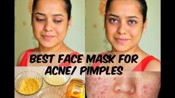Best Face Mask For Clear, Bright & Acne Free Skin| DIY Face Mask| Stylepeaks