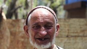 #village #realindia  #kashmir #kashmirdiaries #pehlgam #pahalgamdiaries #RuralOralHealth #ruralOralHygiene #dentalcare #dentist #ruraldentalclinic #oralcare #oralhealth #healthy teeth #teeth #dental #denstistry