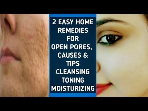 2 EASY REMEDIES FOR OPEN PORES, CAUSES & TIPS, HOW TO DO CTM #cleanser #toning #moisturizing #pores