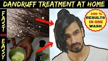 If you are having DANDRUFF or hairfall problems lately, This VIDEO is for YOU. ❤️  Best Homemade Dandruff Treatment. ✨  Another video is up!  Keep Supporting 🔥 Do SHARE it with your friends to help them.   #menonroposo   #soroposo   #roposoblogger   #roposomen   #indianyoutuber   #menshair  #youtubecreators   #youtubeindia   #youtubechannel   #indianblogger   #indianbloggercommunity  #mensgrooming   #mensgroomingtips  #mensblogger   #lifestyleblogger   #growhairfast  #growhairnaturally  #brownhair   #hairstyletips #dandrufftreatment  #anti-dandruff  #dandrufffreehair #homeremedies #dandruffcontrol #dandruff #hairfalltreatment  #followmeonroposo   #followme   #subscribe #haircare  #menshairstyle  #menshair #roposotalks