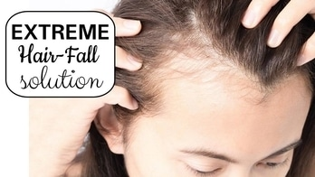 How to STOP Extreme Hair Fall #hairfall #hairsolution #hair #hairproblems #bangaloreyoutuber #youtuber #beautifullyouh