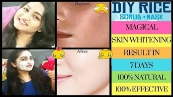SKIN WHITENING/LIGHTENING  in your mind??? 🤔🤔🤔 Chemical products doing more harm instead of any good???😭😭  Here is an 😍Amazing Natural  Japanese Traditional Remedy😍 to 👉Lighten, 👉Whiten & 👉Brighten your Skin Tone.  JUST IN 7 DAYS..❤❤❤ 👌👍100% EFFECTIVE 😎AND NATURAL🌱🌱🌱  Also - 🎁🎁🎁HUGE GIVE AWAY INFORMATION 🎁🎁🎁  #skincare #facemask #facepack #skinwhitening #skinlightening #giveawayalert #giveawaysoon #beauty #fashion #facecare #bloggergirl#naturalremedies #makeup  #homeremediesforskin #homeremdies #skincare #loveskin #naturalproducts #reasonableproducts #skincaretips #skincare#indianyoutuber #indiablogger  #beautytips #beautytipsandtricks #beautybloggerindia #indianyoutubechannel  #newdp #skincare #beauty #maketutorial #skinremedies #indianyoutuber #indianmakeup#femaleblogger#rosposstyle #rosposoblogger#dailycare #skincareessentials  #youtuber #youtubeindia #youtubecreatorindia #youtubevideo #beauty #beautyreview #makeuptutorial #diyvideo #homeremides #beautytipsntricks #healthyskin #healthy #fashion #newdp #makeup#diyvideos#maskforacnemarks &pigmentation #acne #acneskin #acnemarks #acnetips #pimple #pimplefree #scars #removeacne #removeacnefast #removeacnescars #newdp #skincare #beauty#facemasks #facepack  #makeup#homeremediesforskin #homeremdies #skinwhitening #darkspots#pimplemarks #face maskforacnemarks &pigmentation#removepimplefast #skinremedies #indianyoutuber #indianyoutubechannel #indianmakeup #beautyguide#beautyguru