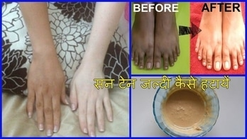 सन टेन कैसे हटायें | How To Remove Sun Tan From Your Face | चेहरे के कालेपन को दूर करने का उपाय #makeup #skincaretips #skincaretips2017 #haircaretips #skinwhitening #skinlightening #homemade #safe #natural  #skincare
