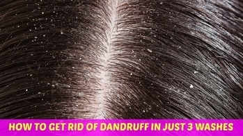 hey guys check out my new video about how to get rid of dandruff faster #youtubecreatorindia #youtubechannel #dandruff #dandrufftreatment #dandrufffreehair #dandruffremedies