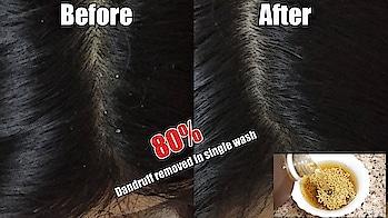 Remove Dandruff using 2 SIMPLE INGREDIENTS | Using Methi (Fenugreek) & Vinegar #dandruff #dandrufffreehair #dandrufftreatment #diy #homeremedies #roposovideo #shwetamb