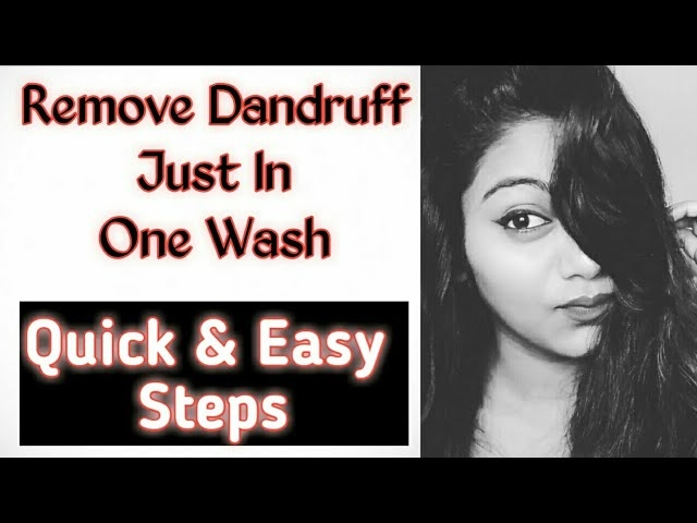 Remove dandruff in one wash. Make to like SHARE & SUBSCRIBE. show some LOVE 😻   #lavishkajain #lavishkafam #dandruff #dandrufffreehair #dandruffs #removedandruff #dandrufftip #dandruffremedies #antidandruff #dandruffcontrol #dandruffshampoo #dandruffproblems #ytcreatorsindia #yt #ytcreator #ytindia #indianyoutuber #indianyoutubechannel #youtubecreatorindia #youtubevideo #subscribe #subscribenow #subscribemychannel