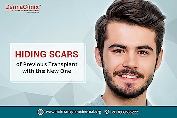 Beard Hair Transplant in Chennai  Are you Searching Beard transplant in Chennai? Visit DermaClinix – Hair Transplant Clinic in Chennai for beard transplant at affordable cost. Schedule your consultation with our beard transplant surgeon today.  For More Information Visit Here:-   http://www.hairtransplantchennai.org/beard-mustache-transplantation.php    http://www.dermatologistchennai.in/beard-mustache-transplantation.php  or call:- +91-8939636222  #hairtransplant #hairtransplantchennai #beardtransplant #beardtransplantchennai