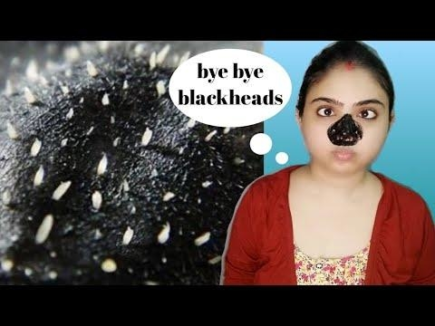 INSTANT BACKHEADS / WHITEHEADS REMOVAL WITH ACTIVATED CHARCOAL PEEL OFF MASK #review #umavlogs