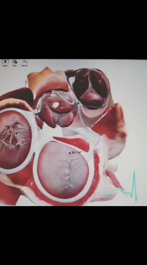 #medicos #cardio #valvereplacementsurgery