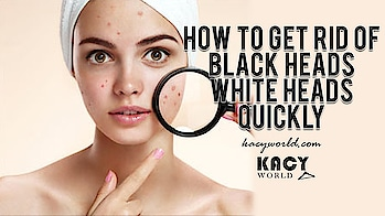 Get rid of those Blackheads from face permanently with this Skin Care Routine...😍😊💝🆗 https://kacyworld.com/get-rid-black-heads-white-heads-quickly/ . #kacy #kacyworld #kacyblog #kacybeauty #skincare #blackheadsremover