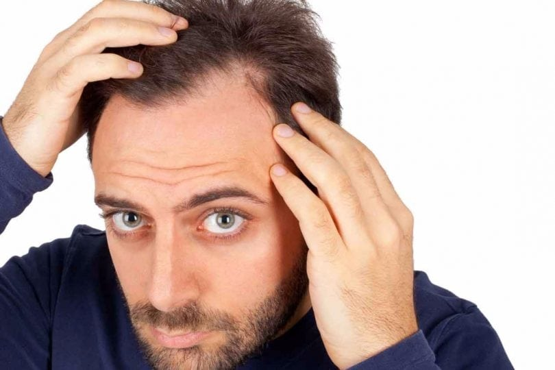 Kinds of Hair Loss  There are various Kinds of reduction of hair caused by various states:  Androgenic alopecia. This affliction affects both genders. Although it's ordinarily called male pattern hair loss in males and female pattern hair loss in women, some physicians believe the problem is really two distinct ailments instead of a symptom of the exact same disease in both genders. Nevertheless, the problem is not fully understood. Female pattern hair loss. This really is the most frequently seen type of baldness among girls, which can be a general and general thinning. Typically, thinning hair in women doesn't lead to an receded hairline or total hair loss. Instead, most girls who undergo a reduction of hair locate their baldness more or less uniformly all around the scalp. As many as 21 million American women are influenced by female pattern hair loss. Male pattern hair loss. Also known as common hair loss or permanent pattern hair loss, this is usually considered to be due to genetics as a person ages, he's very likely to encounter balding if his dad did. Telogen effluvium. This temporary illness, most frequently seen in girls, entails the reduction of hair a couple of months following a substantial event -- anything in the hormonal imbalance which follows maternity into being on a low-protein crash diet to quite a stressful event like operation. This sort of loss typically happens throughout the mind and is normally called a period of shedding; it is very likely to slow down and finally cease within six to eight weeks of this function which caused it. Alopecia areata. That really is an autoimmune disease affecting about 2% of the overall populace. It's typically diagnosed with a couple of small stains on the scalp become totally bald; it may also impact the lashes and eyebrows. Even though there's absolutely no known treatment and the reason remains unknown, the illness regularly reverses itself; nevertheless, in addition, it can replicate. For more details visit https://www.artiushairtransplant.com/