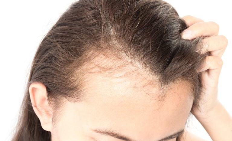 Hair Loss Treatment in Dubai - Men & Women https://www.dubaicosmeticsurgery.com/hair-transplant/hair-loss-treatment/ Worried about Hair Loss? Get Hair Loss Treatment for Men and Women in Dubai with permanent hair restoration at an affordable price. Consult with our expert hair loss surgeons in Dubai For Free! #hairlosstreatmentindubai, #hairlosstreatmentformenandwomen, #hairloss, #hairtransplantindubai, #hairrestorationindubai,