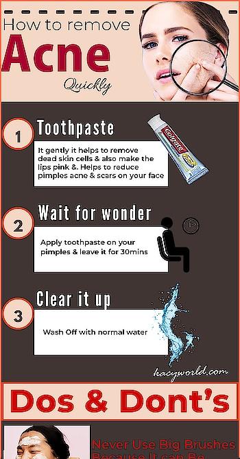 How to remove acne quickly....✅❌😍 For more : https://kacyworld.com/category/skincare/ . . . #kacy #kacyworld #kacyblog #skincare #skincareroutine #beauty #beautyblog #removeacne