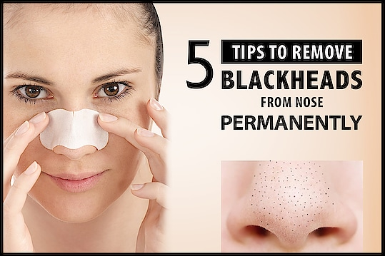 #Blackheads are the pain. No matter how well you wash your face, they show up as an unwanted friend and become very hard and painful to get rid of. But our kitchen has got enough remedies to deal with them. Let's have a look at some tips about how can we use different #Naturalproducts to kick out blackhead without any pain. click on the image to read more...  http://vedicline.com/blog/5-tips-to-remove-blackheads-from-nose-permanently/  #BlackheadsRemoval #Vedicline #NaturalIngredients #SkinMaster #EssentialAyurveda #BeautyProducts #AyurvedicProducts #CosmeticProducts #ActivetedCharcoal #ActiveCharcoalScrub #NaturalExtracts