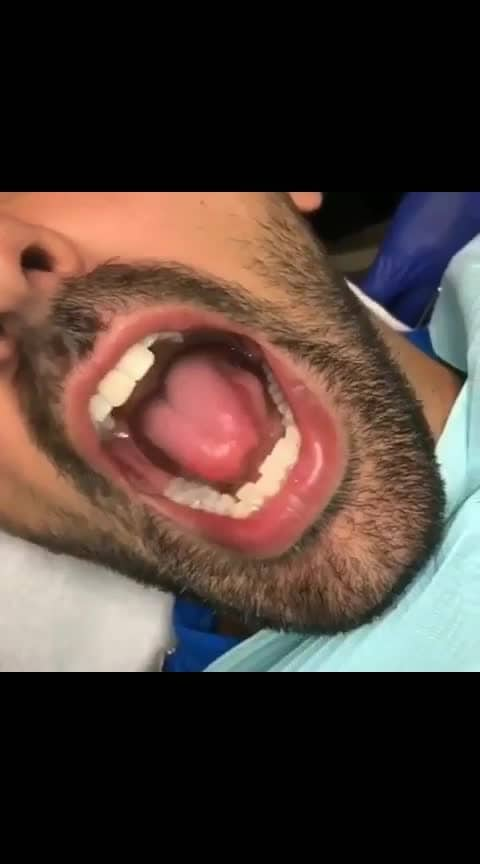 #Have u seen this Before!!!😱😱😱🤢🤪😰😨#dentalcare #oralcare #mouthorgan #tonguetwister #never-seen-before-this #amazinghacks #wow