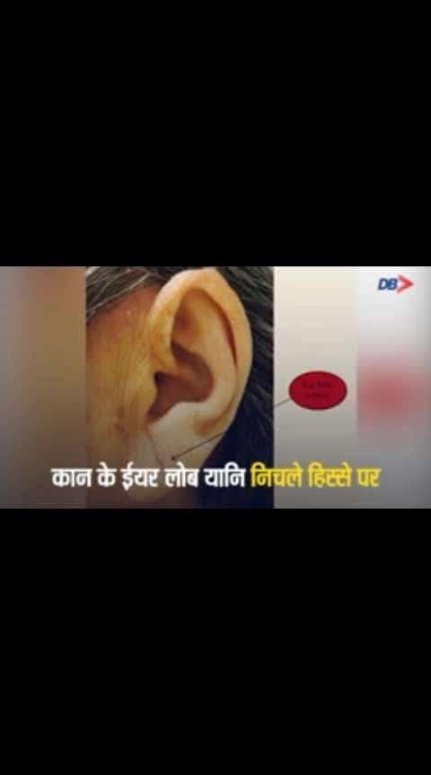 Ear line.