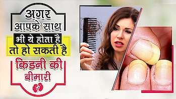 क्या आपके भी बाल झड़ते है तो रहें सावधान | Does kidney Disease affects hair and nail loss ---------------------------------------------------------------------------------------------------------------------- #hairfalltreatment #hairloss #nail-discoloration #alternative-treatment-for-kidney-dialysis #roposo-video #viral #healthcare #new-youtube #without-dialysis #eliminating-waste #advise #healthy #herbalmedicine #kidney-treatment-in-ayurveda #transplant #healthyness #roposo-healthy-post