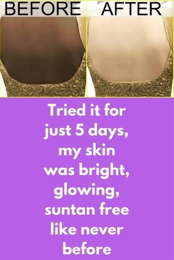 BEAUTY You need just 5 days to get bright, glowing, suntan free skin BY GP TEAM JUNE 24, 2017  Because of stressed lifestyle and continuous exposure to pollution and sunlight skin becomes tanned, uneven and dull. Today in this article we are going to share a super effective body polishing treatment. Just do this treatment 3 times in a week and you can see amazing results yourself This treatment will complete in 3 easy steps Oil massage Scrubbing Shine treatment Step 1 – For this you will need, Sweet almond oil Massage your body very well with this oil for 15 minutes so it is well absorbed deep into your skin Step 2 – For this you will need, 1 spoon rice flour + 1 spoon Indian gooseberry powder + 2 spoon potato juice Mix all of them in clean bowl and your scrub is ready Apply this scrub on affected area and scrub it for 5 minutes Rice powder will remove all dirt from your skin and will also remove dead skin layer. Gooseberry powder is effective to get rid of pigmentation. Potato juice will act as natural bleaching agent Leave it for 10 minutes and then wash it off and pat dry Step 3 – For this you will need, 1 spoon grated papaya + 1 spoon honey Mix both of them and your shining pack is ready Apply this on affected area and massage for 5 minutes Leave it for 10 minutes and then wash it off and pat dry