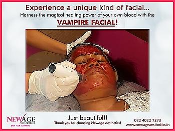 Vampire facial, the magic of your own blood for your skin rejuvenation at NewAge Aesthetics Skin, Hair, Laser, Cosmetic Clinic, Andheri, Mumbai. #vampirefacial #prpfacial #prptreatment #prptherapy #vampirefacelift #facelift #naturalfacial #nonsurgicalskincareclinic #nonsurgicalfacelift #newageaestheticsmumbai #plateletrichplasma #platelet rich plasma #skinrejuvenation #wrinklereduction #skintightening #microneedling