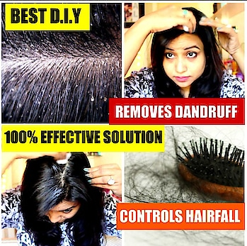 Hii guys, Do checkout my recent video.. If you are facing major dandruff issues and hairfall problems then do watch this video, this Home made diy will definitely give you relief .. So do check it out link to my YouTube channel is in insta bio..  #dandrufftreatment #hairfall #diy #homeremedies #natural #veryeffective #indianbeauty #indianvlogger #indianyoutuber #youtuber #indianyoutuber #instadaily #follow #subscribe #insta #instadaily