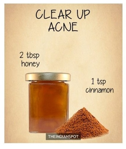 ACNE CURE: I hate Acne n Pimples n Genuinely who does not?? so Here's the MAGICAL TIP to get RID of em soon💂 . . INGREDIENTS: HONEY & CINNAMON 🌸 2 tablespoon honey n 1tsp Cinnamon. mix them well to make a good consistency. Apply it on Clean Face for good 30 mins. Do this for a Week and you will get to see the Magic✨ . . . . #acne #acnescars #acneproneskin #acnefree #clearskin #glowingskin #beautyvlogger #beautytipsandtricks #simpleremedies #homeessentials #homeremediesforskin #pimplefreeskin #bloggerindia #bloggerdairies #tryit #believe #ropo-beauty #confidenceissexy #cystel clear #skin  Beauty is Confidence. keep Smiling n Loving🤗 Love to all❤