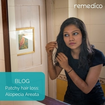 Alopecia is the medical term for patchy hair fall. Read more about this condition in our latest blog post (link in bio)  #Remedico #alopecia #tech #startup #health #dermatology #dermatologist #dermatologia #skin #hair #skincare #haircare #healthy #healthcare #like #love #follow  #instagood #instadaily #potd #canva #brand #india #entrepreneur #startups #mobile #digital #blue