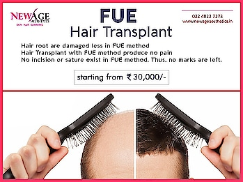 FUE Hair transplantation starting from Rs.30,000/-* Grow your own natural hair.  No pain. No scar. Permanent. 1 day procedure.  #hair #hairtransplantation #haircare #hairtransplantclinic #malepatternbaldbness #hairloss #hairtransplantsurgery