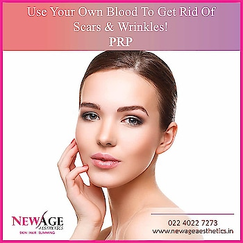 Vampire Facelift With Platelet Rich Plasma  Platelet Rich Plasma (PRP) is a plasma derived from your own fresh blood that contains a concentrated source of growth factors or cytokines required for wound healing.   They are:  Connective tissue growth factor Epidermal growth factor (EGF) Fibroblast growth factor Insulin-like growth factor 1 and 2 (ILGF), Interleuken 8 (ILGF) Keratinocyte growth factor  Transforming growth factor beta (TGFß) Angiogenesis that is formation of new blood vessels New cell proliferation Migration of stem cells to area Production of extracellular matrix proteins Vascular endothelial growth factor  When platelets are activated, they release adhesive glycoproteins and above growth factors. They interact with present skin cells and causes regeneration within the tissues.  Growth and repair continue for up to one month after the PRP treatment. The result is new, healthy skin. #prptreatment #vampirefacial #platelet rich plasma #vampirefacelift #skincareroutine #newageaestheticsmumbai #skincareclinic