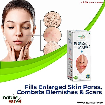 ights wrinkles and signs of ageing. Natural sunscreen that protects against harmful UV rays. Unclogs and fills enlarged skin pores. Nature Sure™, a brand that is trusted globally for its products made with 100% pure & top-grade ingredients at GMP- and ISO-certified units  Buy now!  Amazon: https://amzn.to/2JjMnsq  Flipkart: https://bit.ly/3bxW2b7  Nature Sure: https://bit.ly/3aq4Cs5  #naturesure #acnescars #skin #dryskin #darkspots #safe #breakouts #eczema #stretchmarkremoval #nigeria #unitedstates #southafrica #moisture #whiteheads #skincareproducts #spots #naturalskincare #naturalproducts #skincaretips
