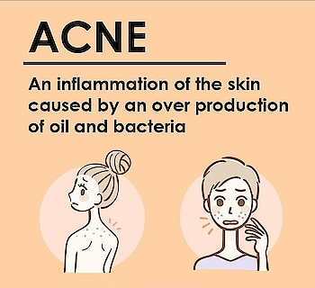 Acne on each area of your face reflects a different reason. #knowyourskin  #acne  #skincare
