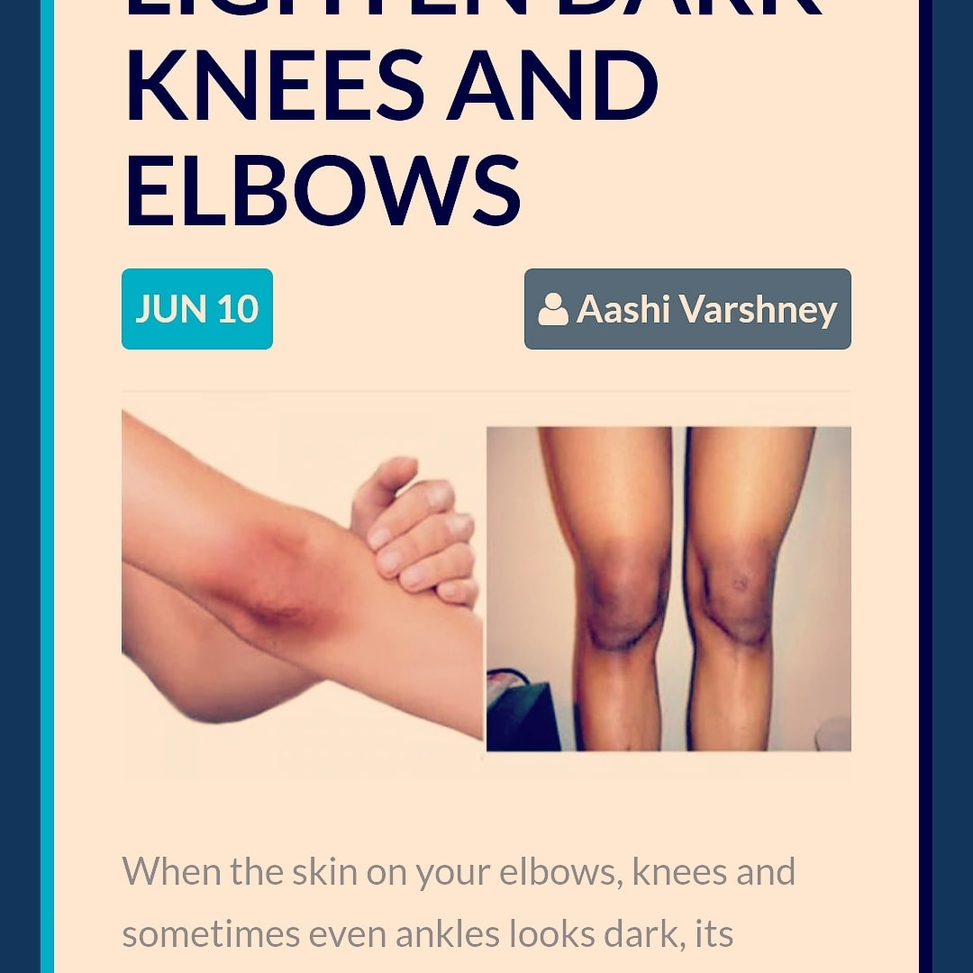 Do check out the post.  Link is in bio! :* #blogger #beauty #skincare #darken #elbows #knees #homeremedies