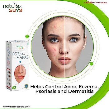 Nature Sure™ Pores and Marks Oil is an amazing moisturizer that unclogs and fills enlarged skin pores, heals stretch marks and prevents loss of elastin and collagen. Buy now!  Amazon: https://amzn.to/2JjMnsq  Flipkart: https://bit.ly/3bxW2b7  Nature Sure: https://bit.ly/3aq4Cs5  Also available on Nykaa, Snapdeal , Paytm and others  #naturesure #acnescars #skin #dryskin #darkspots #safe #breakouts #eczema #stretchmarkremoval #nigeria #unitedstates #southafrica #moisture #whiteheads #skincareproducts #spots #naturalskincare #naturalproducts #skincaretips