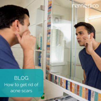 Are you wondering what you can do about the scars acne leaves behind? Check out latest blog post! [LINK IN BIO]  #Remedico #faq #tech #startup #health #dermatology #dermatologist #dermatologia #skin #hair #skincare #haircare #healthy #healthcare #like #love #follow  #instagood #instadaily #potd #canva #brand #india #entrepreneur #startups #mobile #digital #blue
